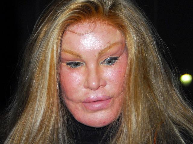 пластические операции женщина кошка фото