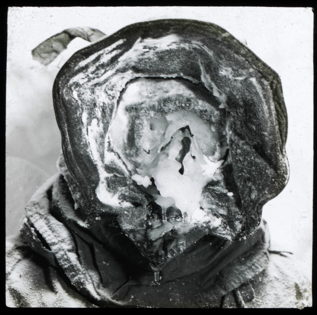 the-meteorologist-with-an-ice-mask-australasian-antarctic-expedition-1911-1914_6173948894_o.jpg